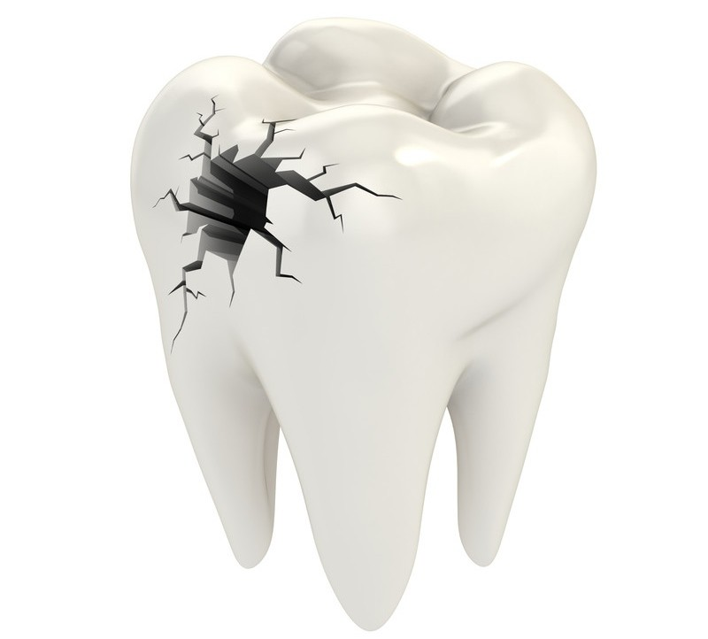tandskader lettere at anmelde